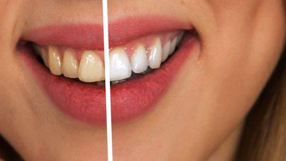 Zähne vor und nach Reinigung.